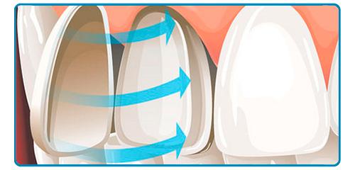 Carillas dentales en Montequinto