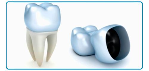 Coronas dentales en Montequinto