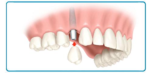 Implantes dentales en Montequinto