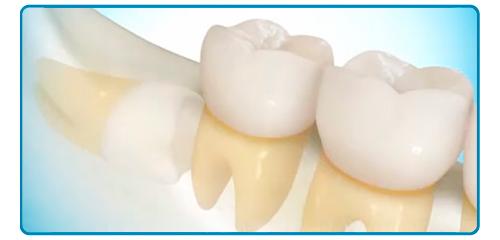 Cirugia dental en Montequinto