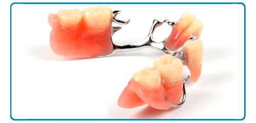 Protesis Dentales en Montequinto