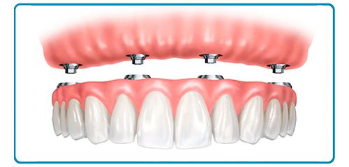 Prótesis dentales hirbidas en Montequinto