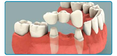 ejemplo de puente dental de tres piezas
